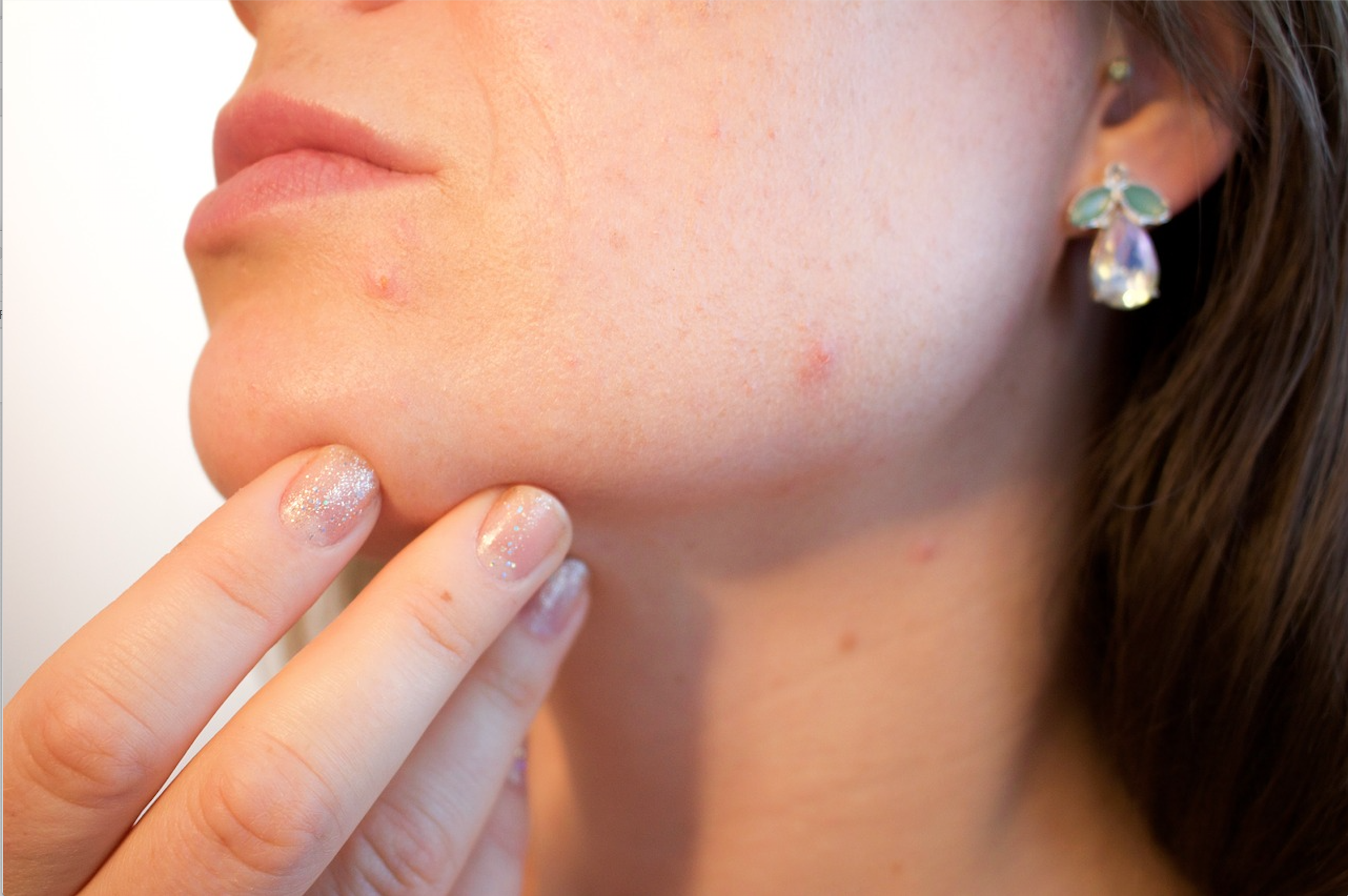 Acne, dermatitis